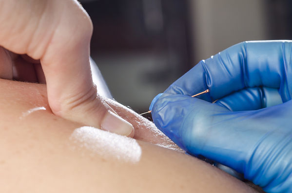 Closeup of a needle and hands of physiot