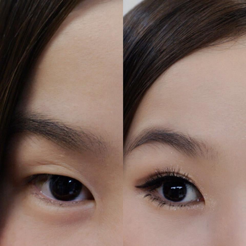單眼皮調整成雙眼皮