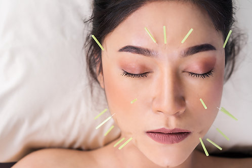 Cosmetic Acupuncture Facelift | 8 Sessions