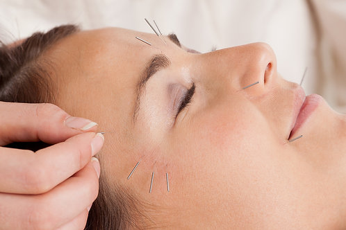 1 Cosmetic Acupuncture Facelift