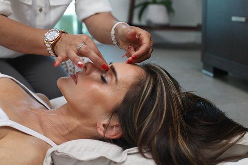1 Return Acupuncture Session