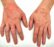 eczema_edited.png