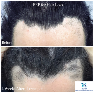 PRP for hair loss.png