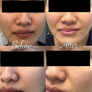 Microdermabrasion helps with uneven skin tone and pigmentation