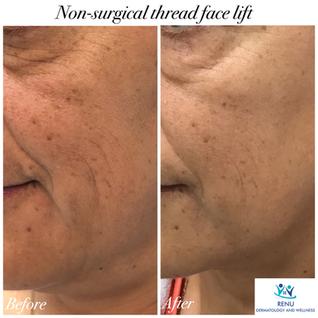 Non-surgical thread face lift