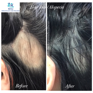 PRP Injection effective for hair loss