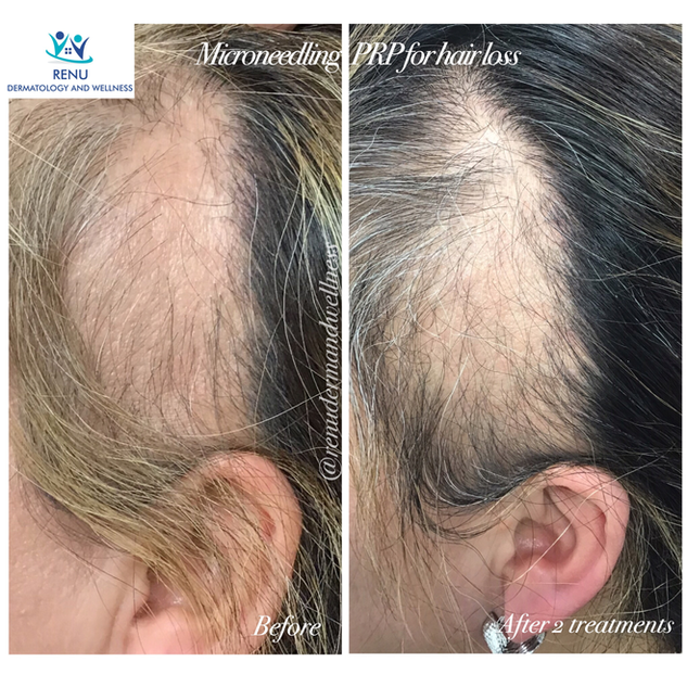 PRP Injection helps hair growth