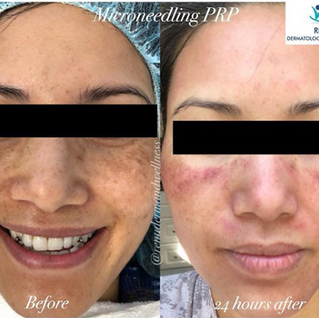 PRP Microneedling before and after.png