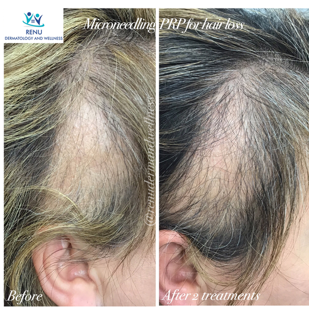 PRP Injection works to regrow hair