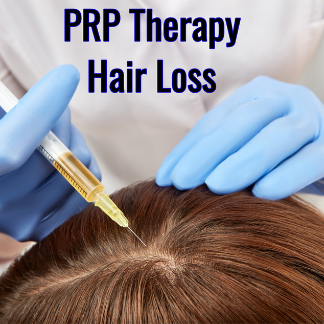 PRP Therapy works for hair loss