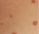 skin tags.png