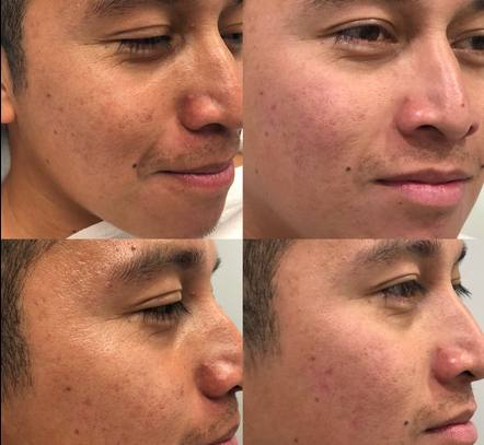 microdermabrasion results before and after