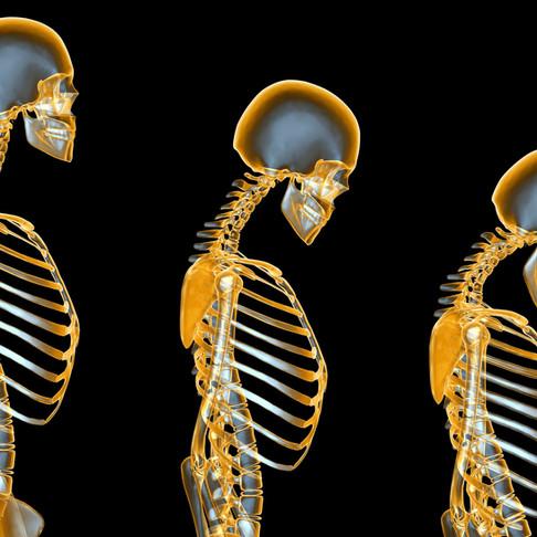 Aquatic Exercise Against Osteoporosis