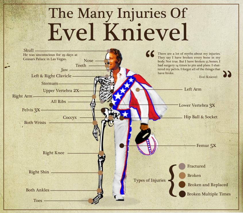 Evel Knievel, injuries
