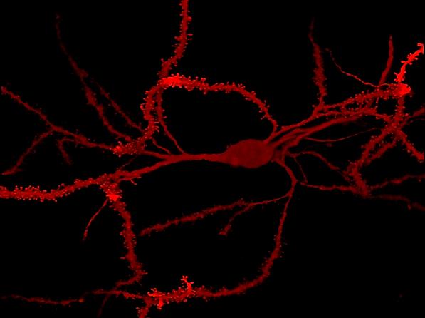 red neuron.tif