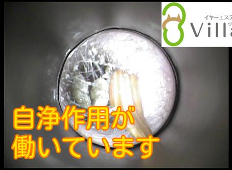 耳掃除動画vol.87「自浄作用が働いています」