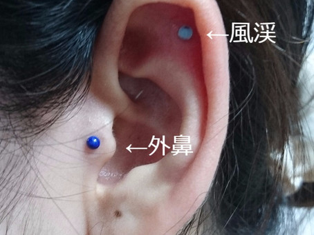 耳つぼジュエリー(オリキュロミラクルストーン)
