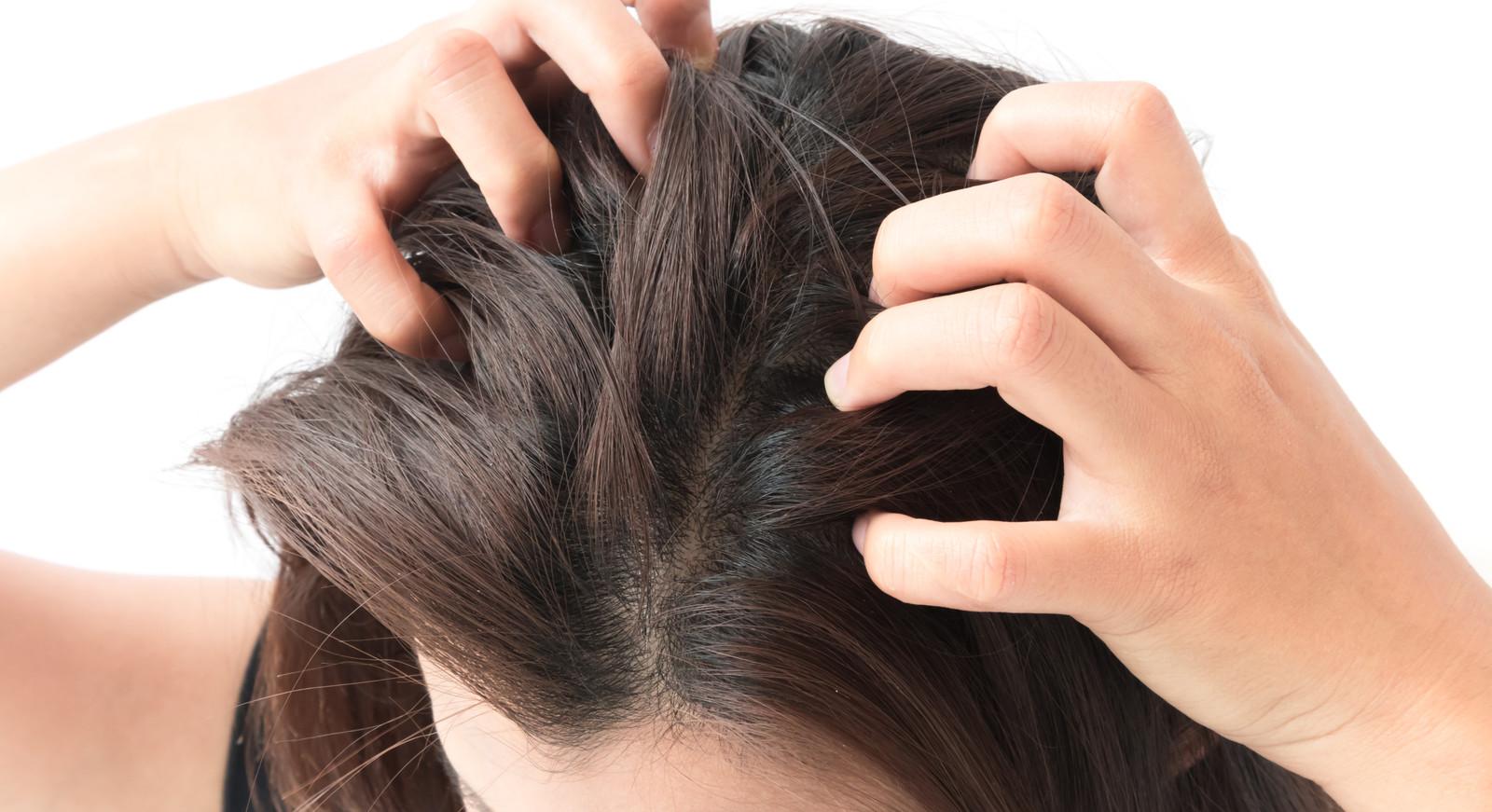 tips tegen droge hoofdhuid