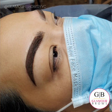 Combo Brows Correction