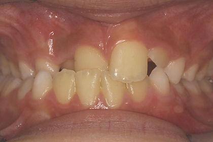 Inversé d'articulé - Ermont-Eaubonne Orthodontie - Traitement interceptif