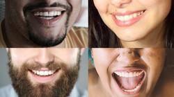 sourire-composite2
