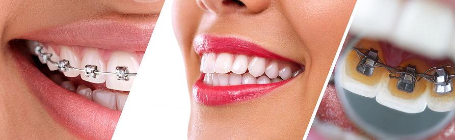orthodontie adulte.jpg