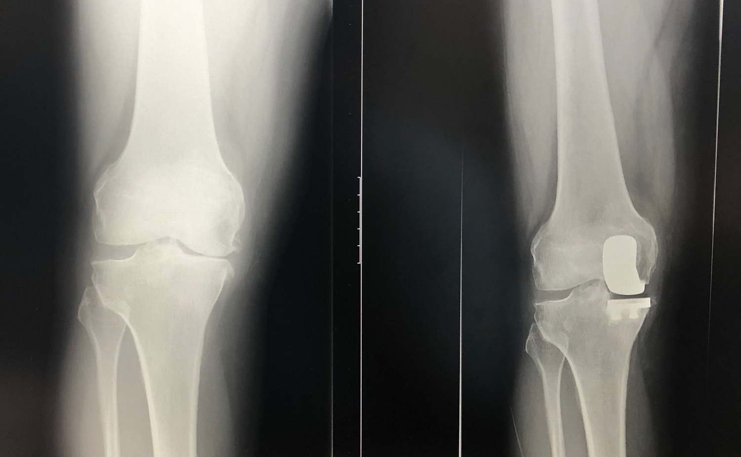 navio partial knee xray image