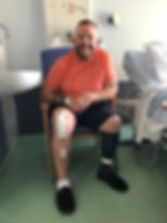Patient recovering next day after robotic knee surgery lodon clinc