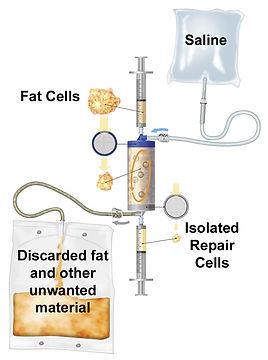 Lipogems London hip knee stem cell injection clinic