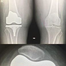 Robotic computer assisted knee replacement private NHS west london clinic