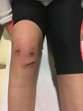 acl surgery scars 10 days after west lodon knee clinic