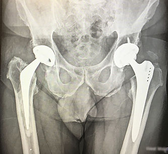 Private revision hip surgeon west london xray