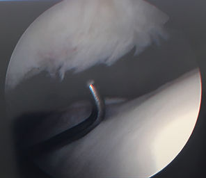 keyhole knee surgery picture with torn cartilage