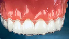 Retainers can come in several forms. Retainers can be made of wires and acrylic, or they can be made of plastic, called Essix, or Trutain.
