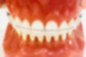 Ceramic Braces | Clear Braces | Esthetic Option for Orthodontic Patients