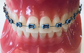 Kind Orthodontics | Metal Braces | Small and Comfortable Braces | Straighten Your Teeth | Light wires | Colored Elastic Choices