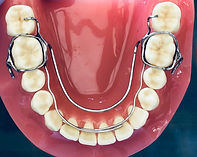 Kind Orthodontics | Crozat | Orthodontic Appliance | Makes Room for your Teeth