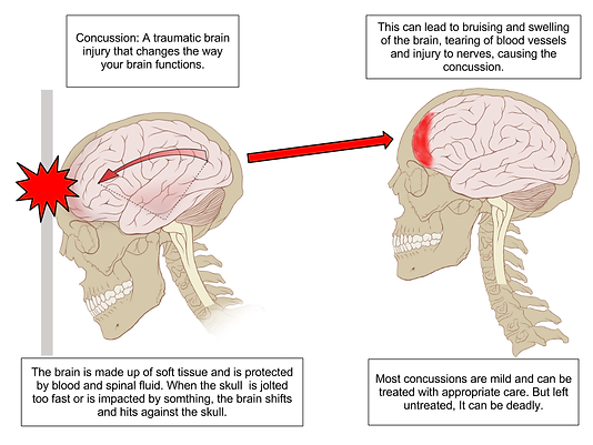 Concussion_Anatomy.png