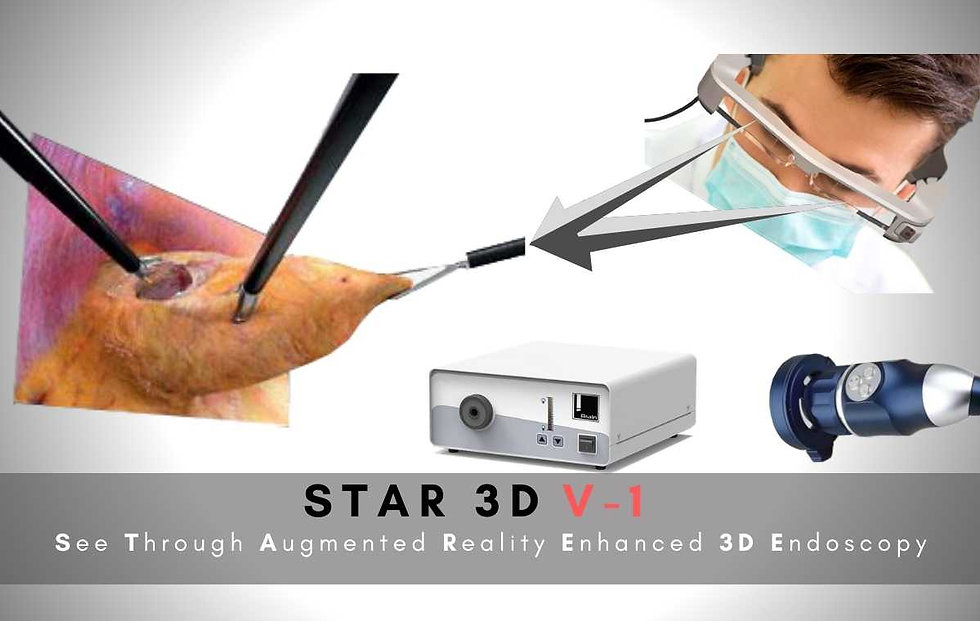 STAR 3D Endoscopy System
