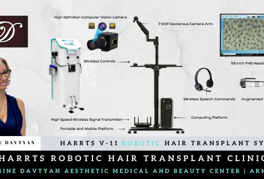 HARRTS V-11 Robotic Hair Transplant System Now in Yeravan | Armenia