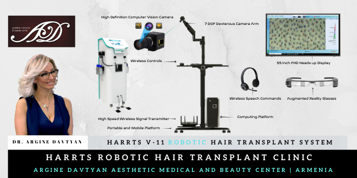 HARRTS V-11 Robotic Hair Transplant System Now in Yeravan | Armenia