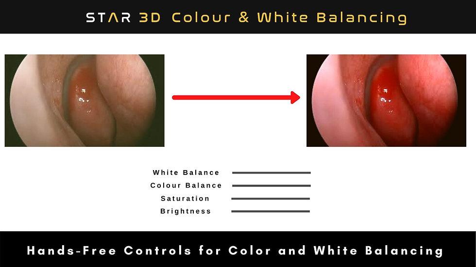 STAR 3D Endoscopy & Microsurgery System