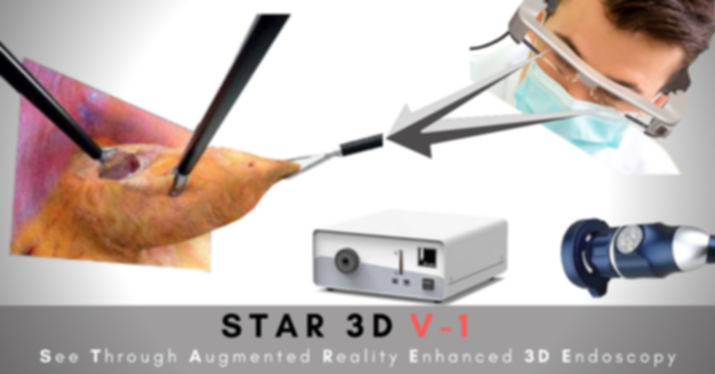 STAR 3D V-1 | 3D Endoscopy System