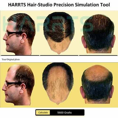 HARRTS Hair Studio Hair Transplant Results Simulation Tool