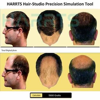 HARRTS Robotic Hair Transplant System