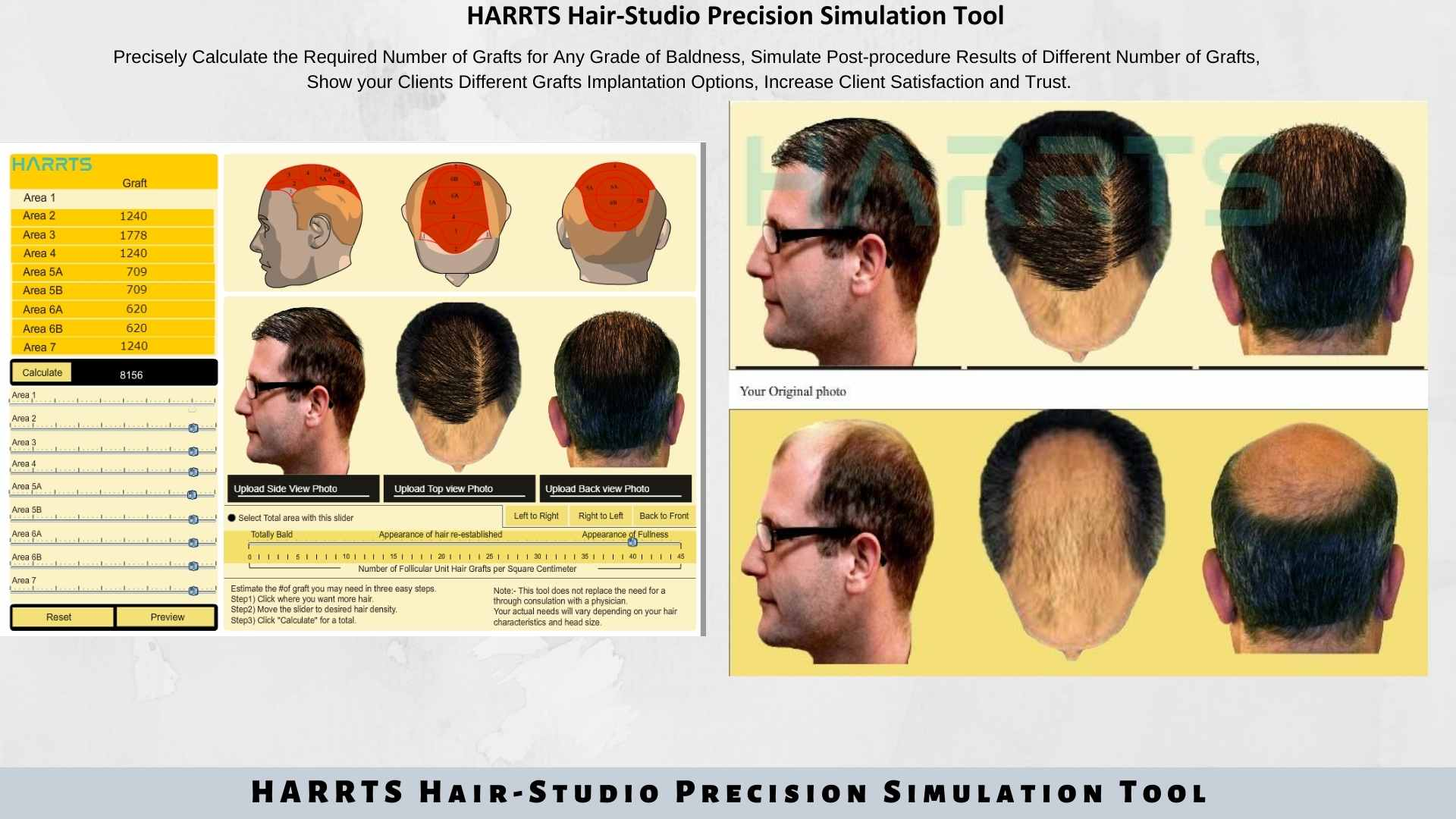 HARRTS Hair Studio Hair Transplant Simulation and Analysis Tool.