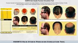 HARRTS Hair Studio Hair Transplant Simulation and Analysis Tool.