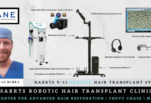 HARRTS V-11 Robotic Hair Transplant System Now in Chevy Chase | Maryland | USA