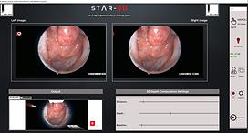 STAR 3D Endoscopy System Application Pan