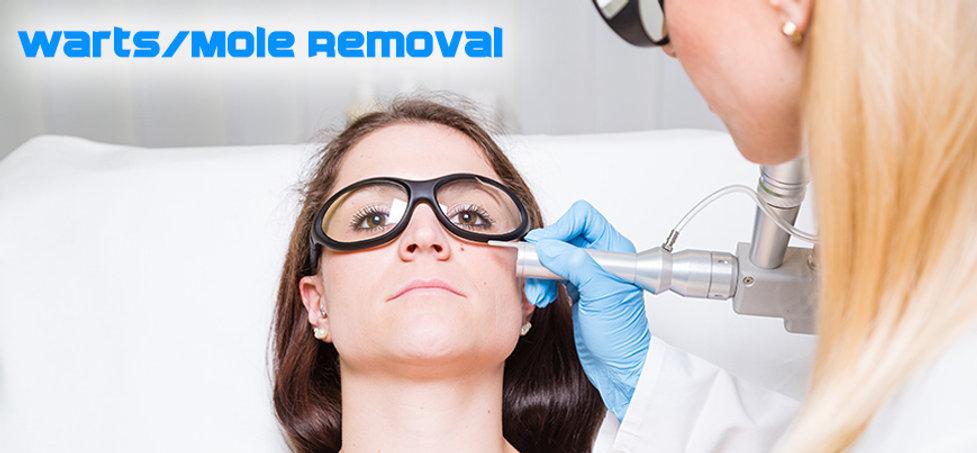 warts-mole-removal.jpg